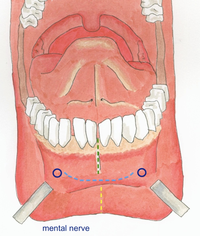 mouth showing incisions
